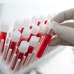 Германия се върна на нивата нови заразени с COVID-19 от април